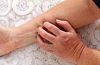 Eczema's not just skin deep